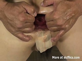 extreme anal fisting and pepper insertions